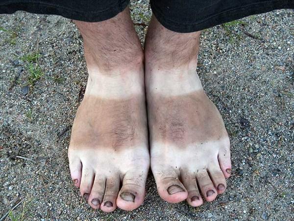 Фото. 78. Загар Роминых ног в стиле «Барбус»