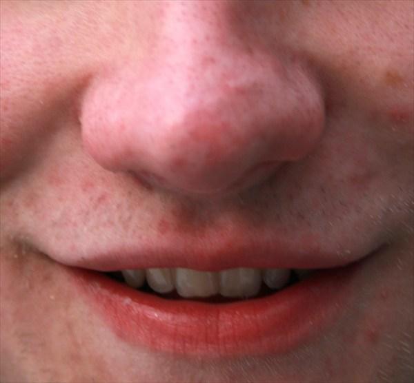 Угадай чья улыбка?